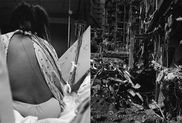 LaToya Ruby Frazier, Landscape of the Body (Epilepsy Test), 2011.  Tirage gélatino-argentique monté sur carton, 60,1 × 101,6 cm. Courtesy Galerie Michel Rein, Paris. © LaToya Ruby Frazier